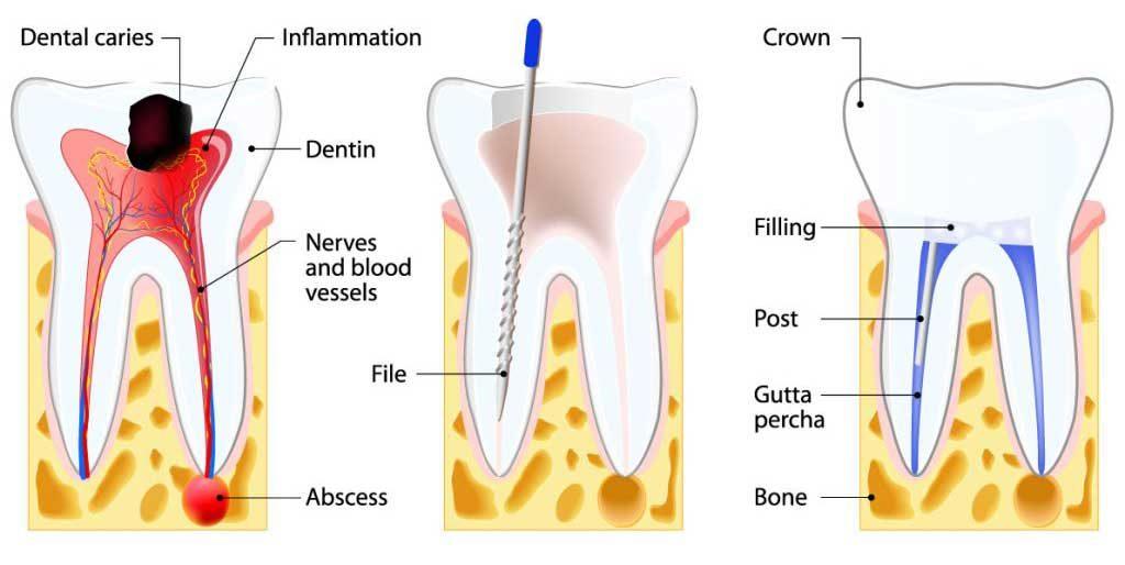 Root Canal Mayhew Dental